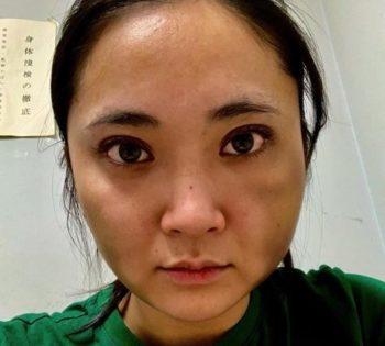 ジャンジンフー(蒋勁夫)が彼女の中浦悠花にDV?経歴やあざだらけの顔画像も気になる!